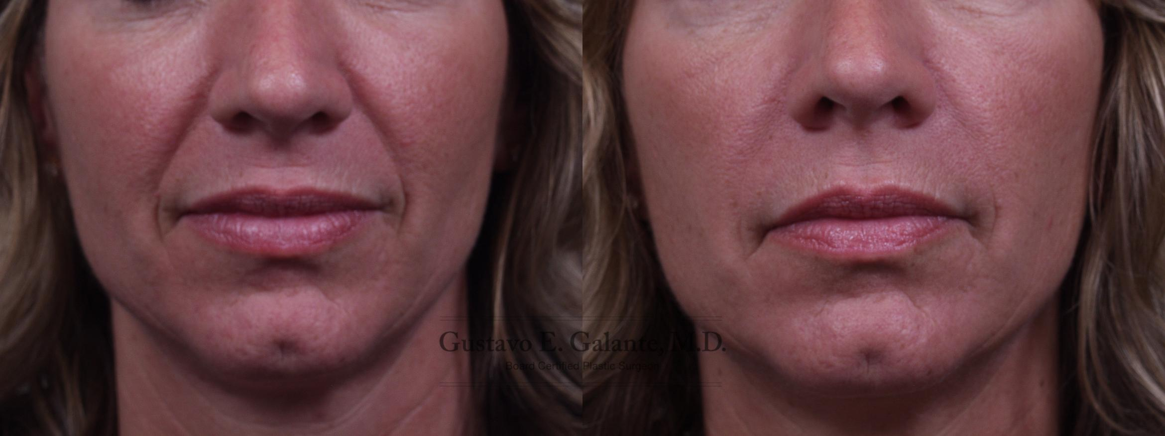 BOTOX® Cosmetic Case 120 Before & After View #1 | Schererville, IN | Gustavo E. Galante, MD