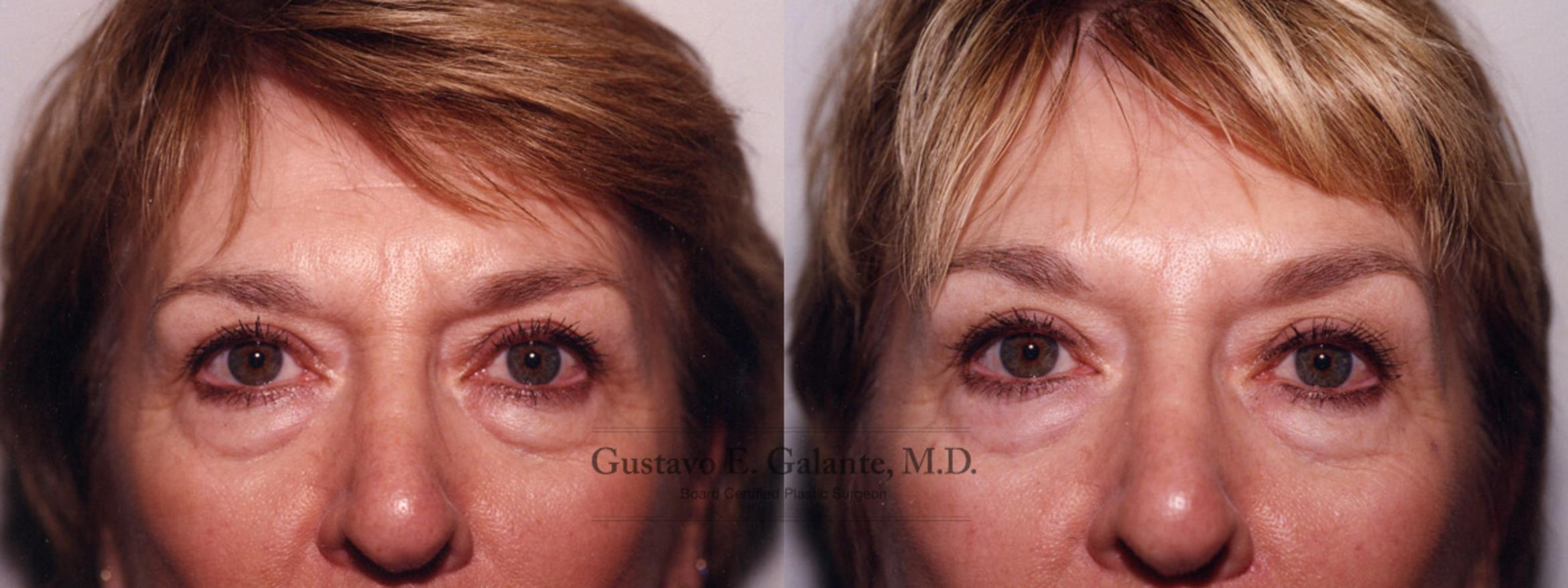 BOTOX® Cosmetic Case 88 Before & After View #1 | Schererville, IN | Gustavo E. Galante, MD