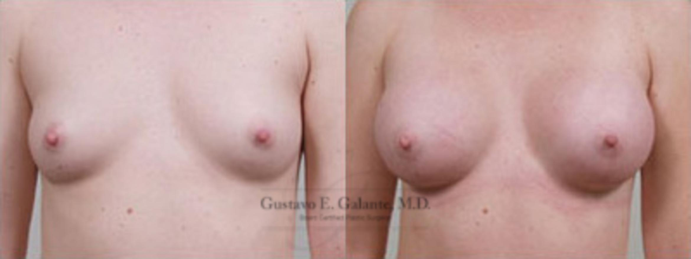 Breast Augmentation Case 1 Before & After View #1 | Schererville, IN | Gustavo E. Galante, MD