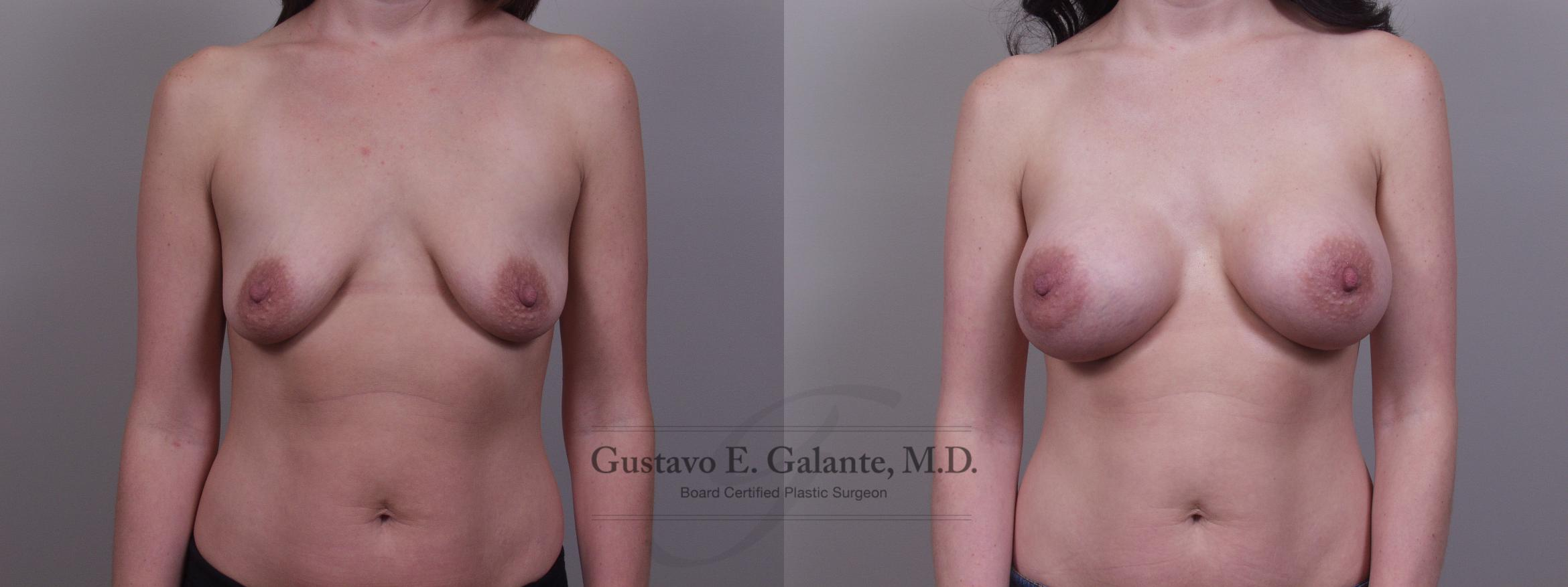 Breast Augmentation Case 103 Before & After View #1 | Valparaiso & Schererville, IN | Gustavo E. Galante, MD