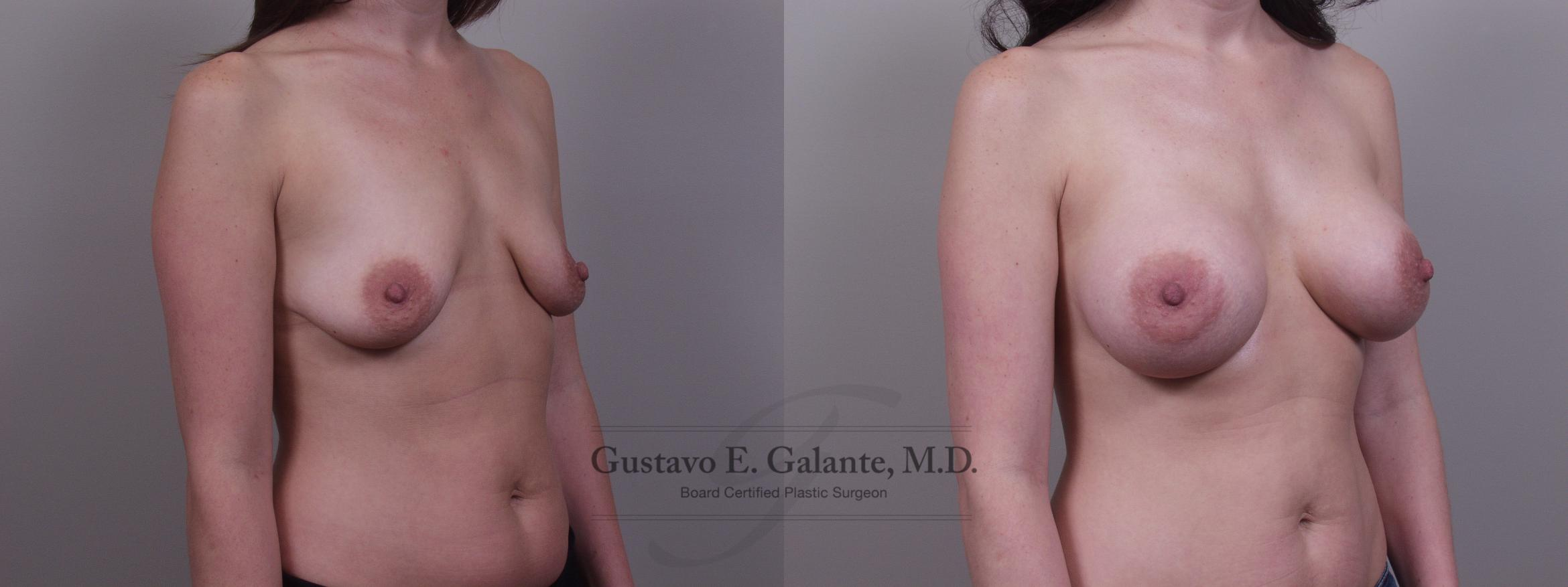 Breast Augmentation Case 103 Before & After View #2 | Valparaiso & Schererville, IN | Gustavo E. Galante, MD