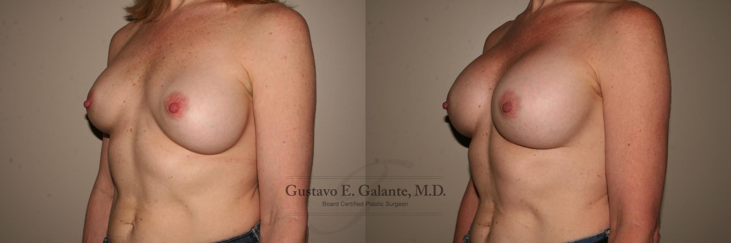 Breast Augmentation Case 115 Before & After View #2 | Valparaiso & Schererville, IN | Gustavo E. Galante, MD