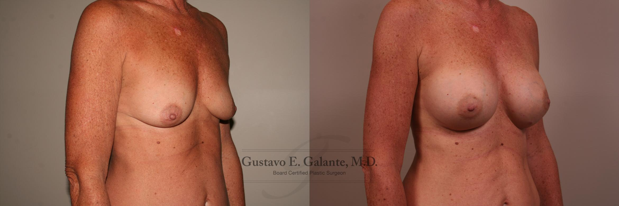 Breast Augmentation Case 121 Before & After View #1 | Valparaiso & Schererville, IN | Gustavo E. Galante, MD