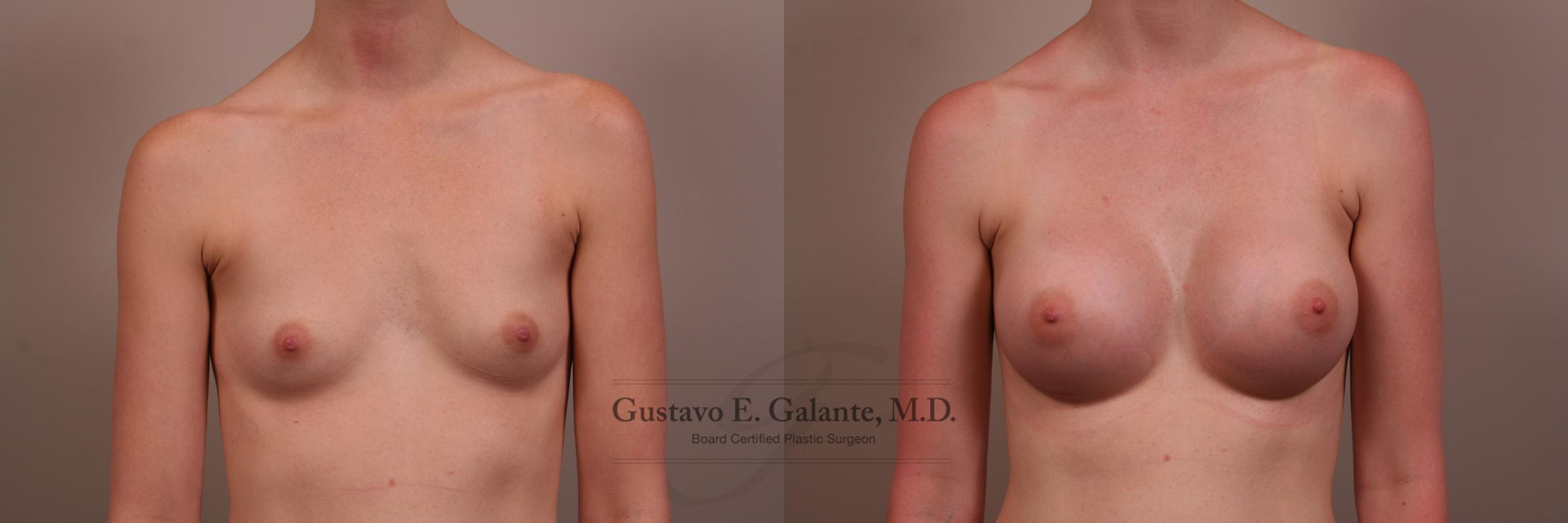 Breast Augmentation Case 123 Before & After View #1 | Valparaiso & Schererville, IN | Gustavo E. Galante, MD