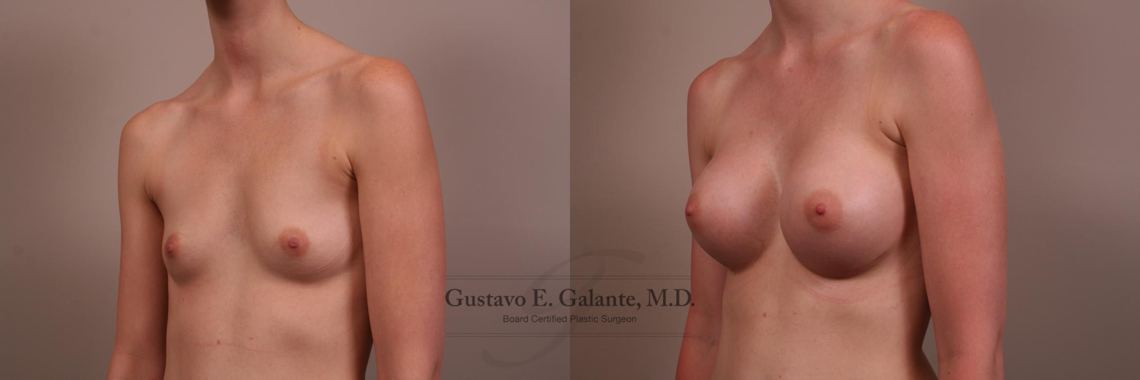 Breast Augmentation Case 123 Before & After View #2 | Valparaiso & Schererville, IN | Gustavo E. Galante, MD