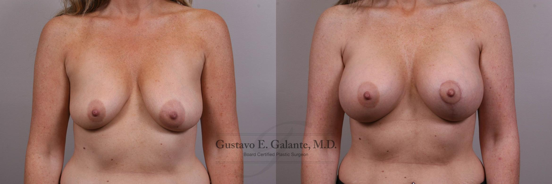Breast Augmentation Case 134 Before & After View #1 | Valparaiso & Schererville, IN | Gustavo E. Galante, MD