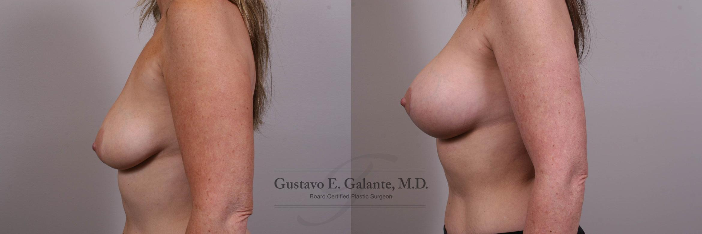 Breast Augmentation Case 134 Before & After View #2 | Valparaiso & Schererville, IN | Gustavo E. Galante, MD