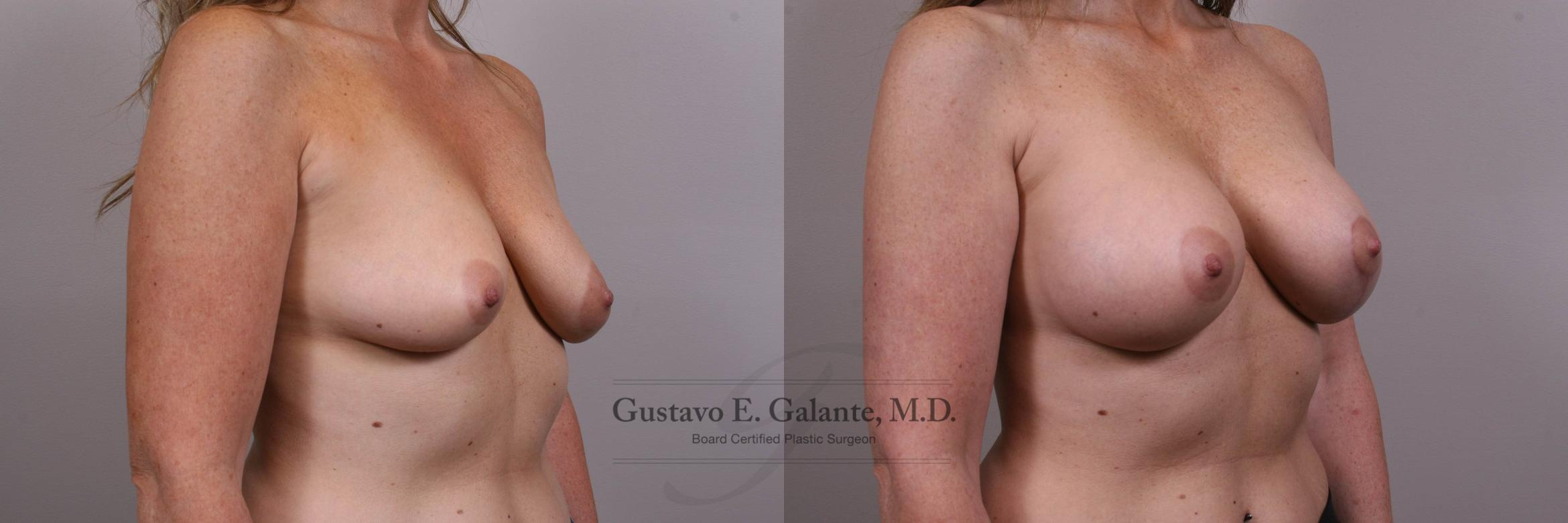 Breast Augmentation Case 134 Before & After View #3 | Valparaiso & Schererville, IN | Gustavo E. Galante, MD