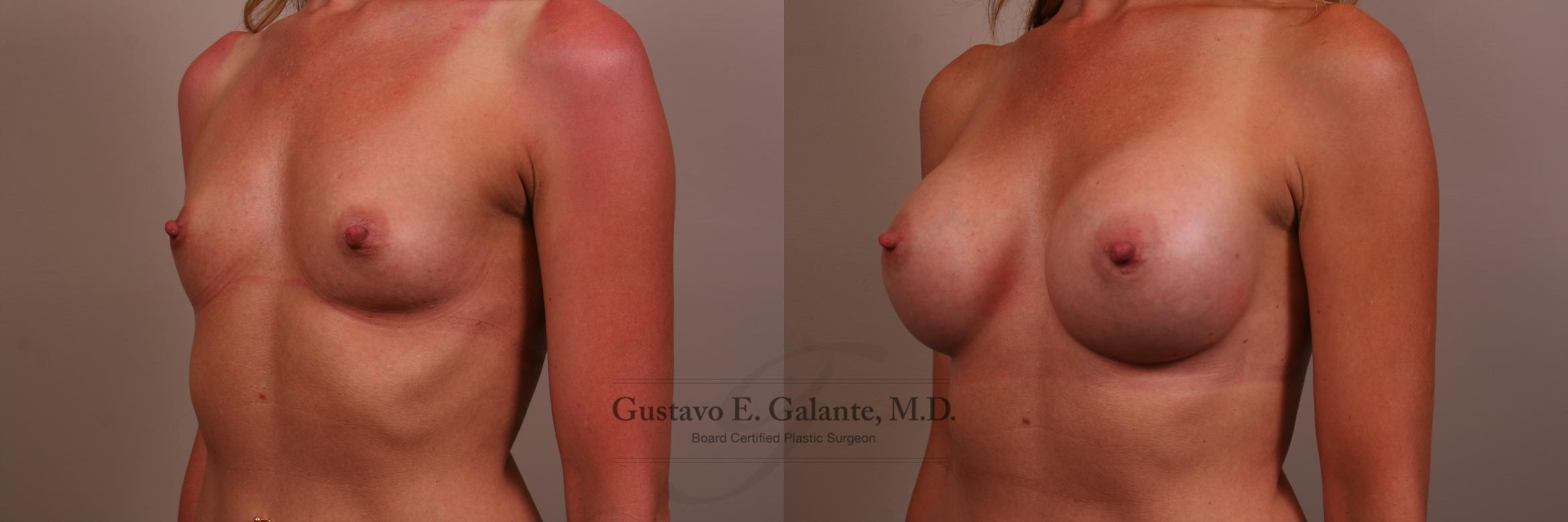 Breast Augmentation Case 136 Before & After View #2 | Valparaiso & Schererville, IN | Gustavo E. Galante, MD