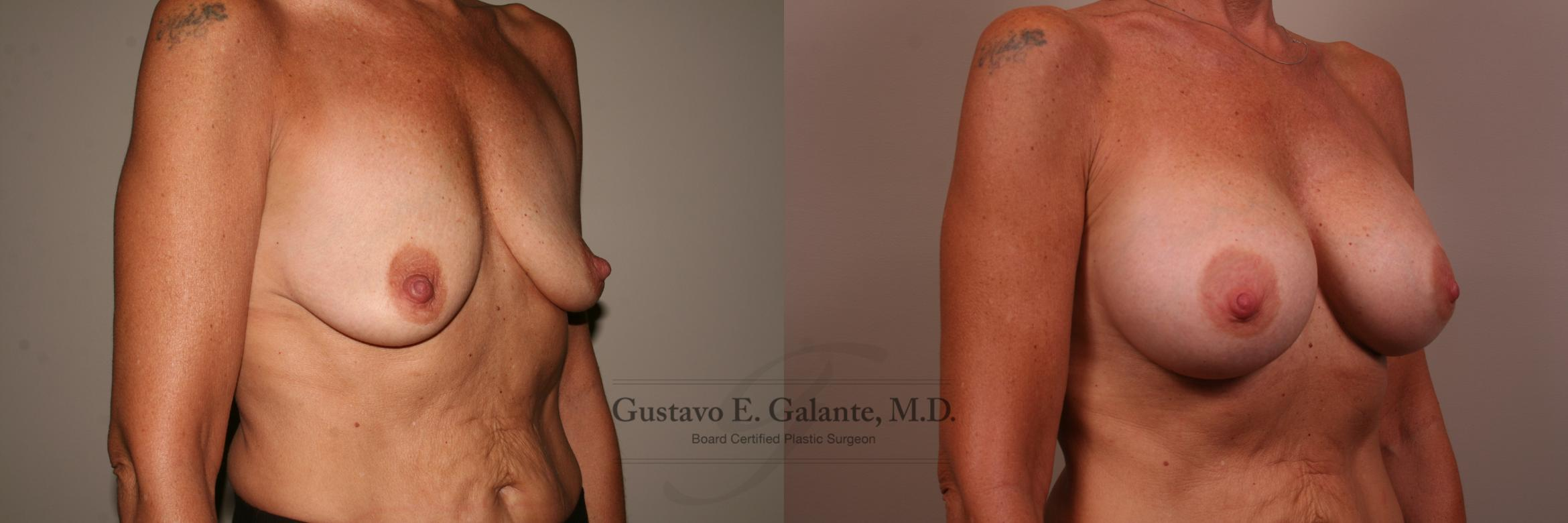 Breast Augmentation Case 139 Before & After View #2 | Valparaiso & Schererville, IN | Gustavo E. Galante, MD