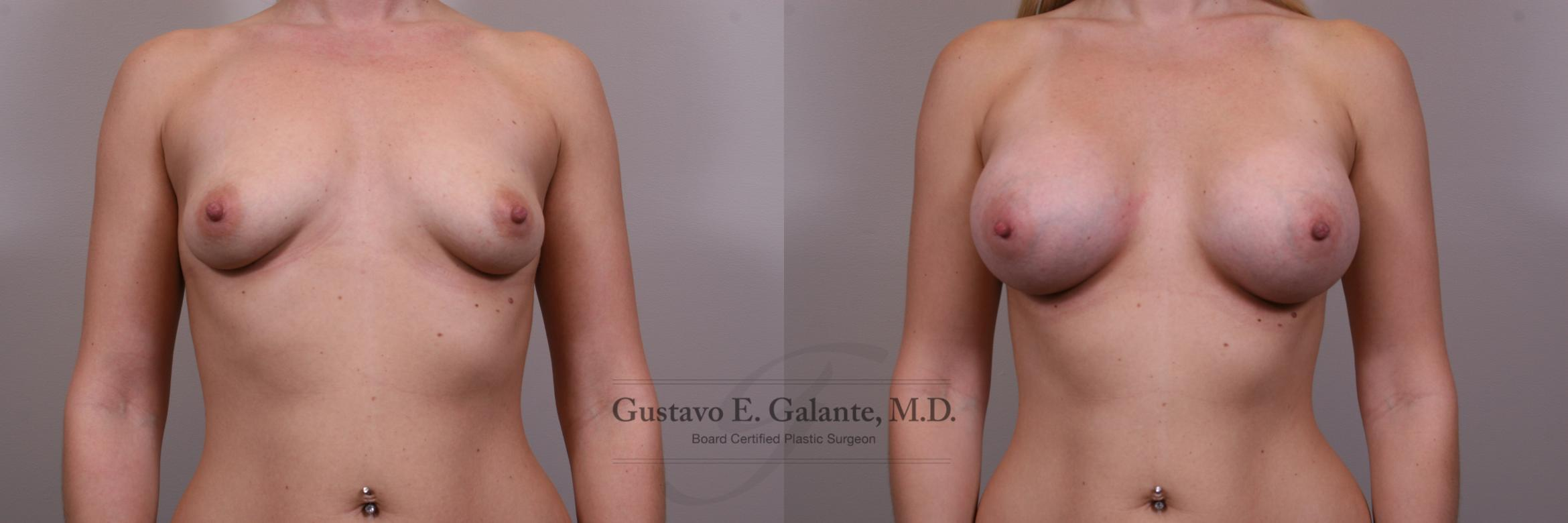 Breast Augmentation Case 149 Before & After View #1 | Valparaiso & Schererville, IN | Gustavo E. Galante, MD