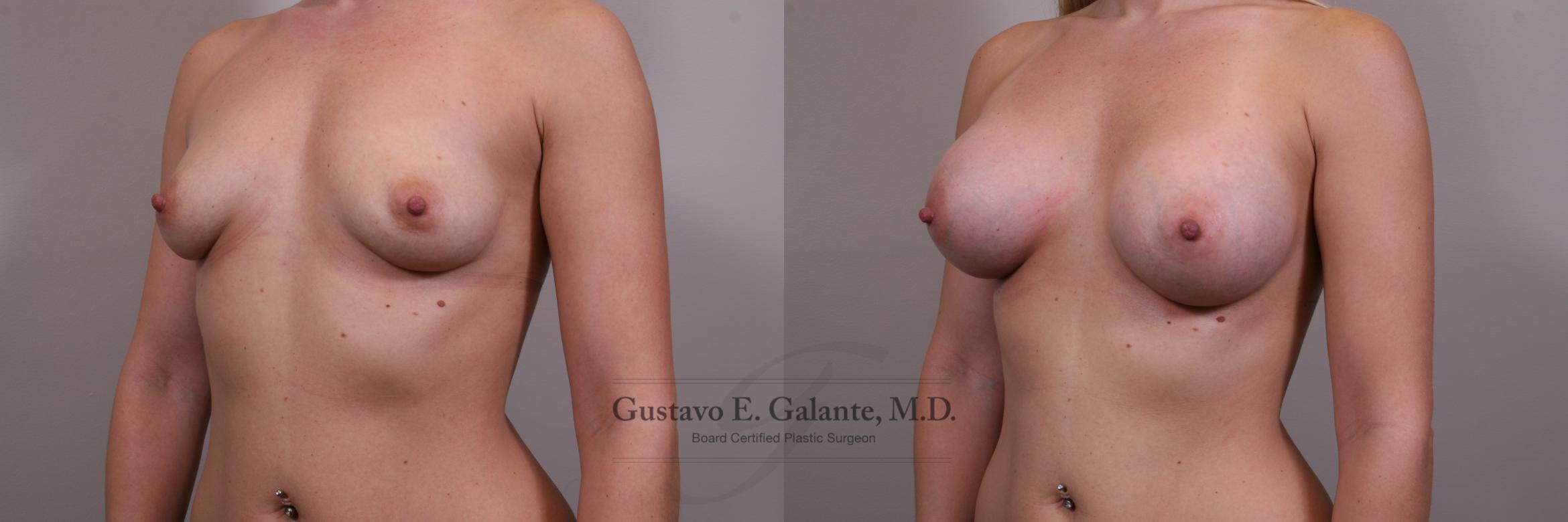 Breast Augmentation Case 149 Before & After View #2 | Valparaiso & Schererville, IN | Gustavo E. Galante, MD