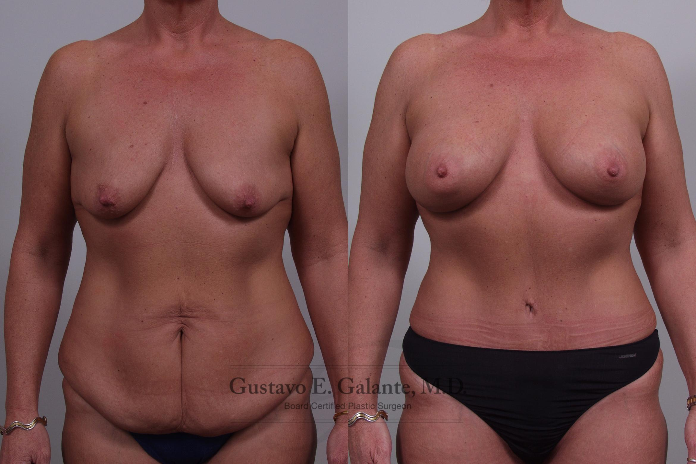 Breast Augmentation Case 47 Before & After View #1 | Schererville, IN | Gustavo E. Galante, MD