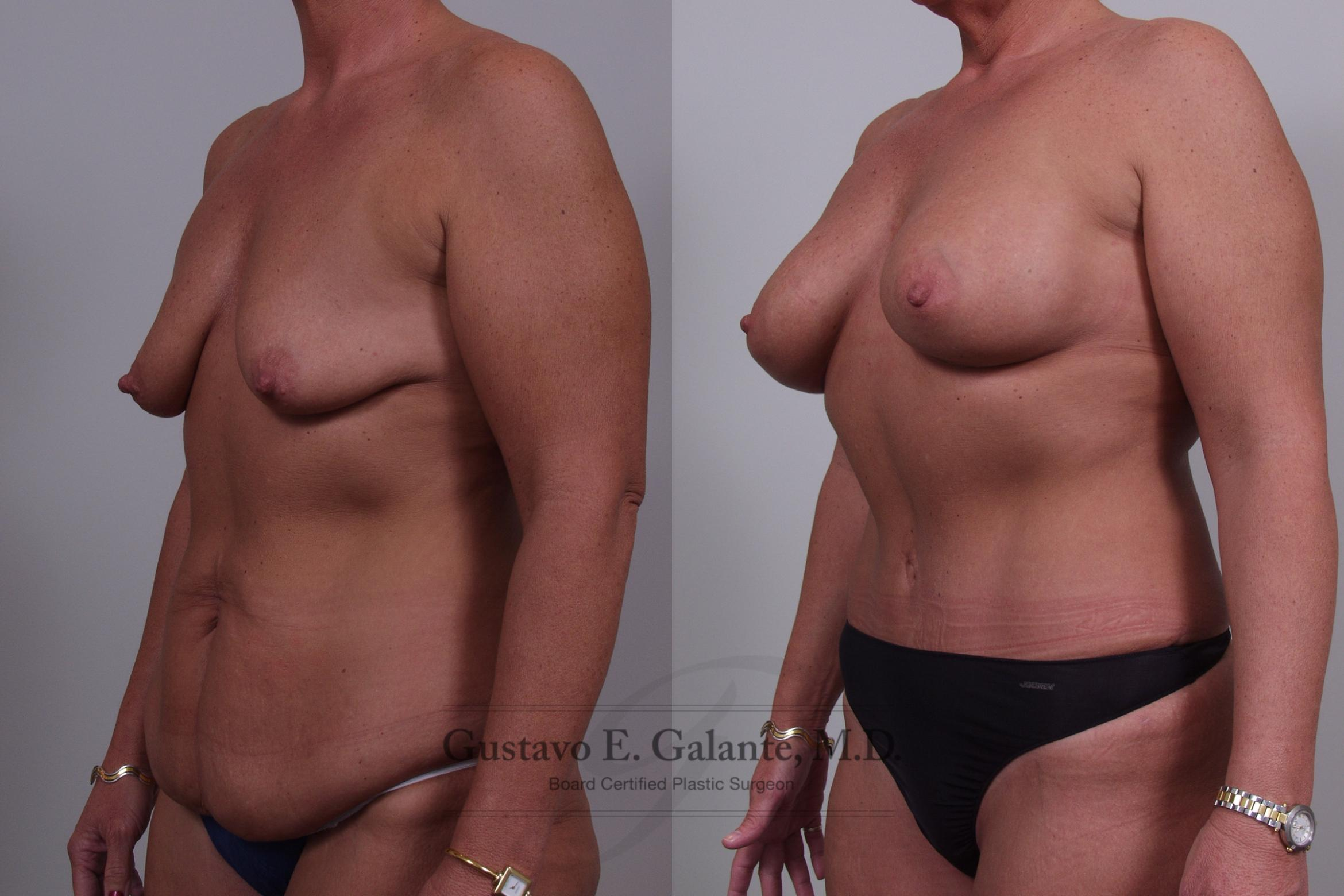 Breast Augmentation Case 47 Before & After View #2 | Valparaiso & Schererville, IN | Gustavo E. Galante, MD