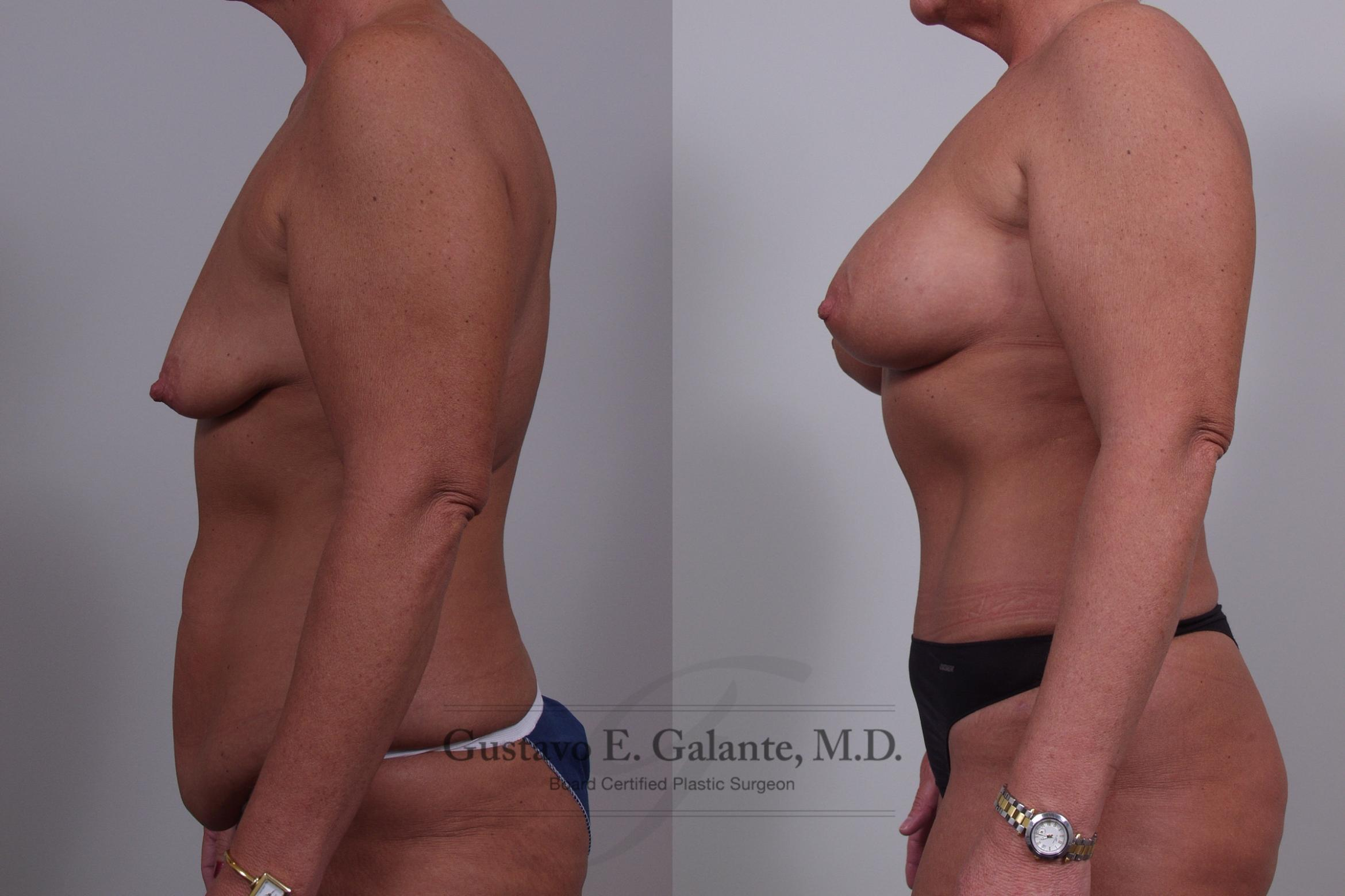 Breast Augmentation Case 47 Before & After View #3 | Valparaiso & Schererville, IN | Gustavo E. Galante, MD