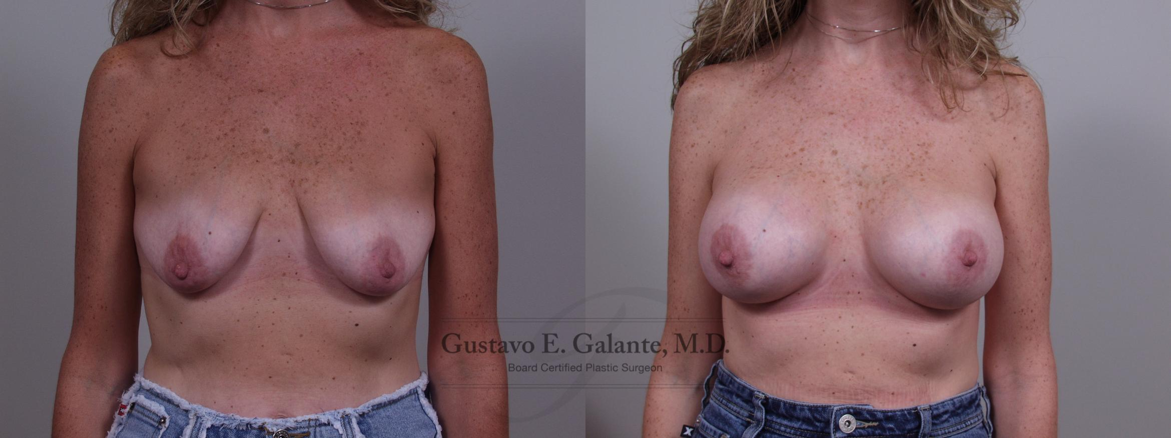 Breast Augmentation Case 56 Before & After View #1 | Valparaiso & Schererville, IN | Gustavo E. Galante, MD