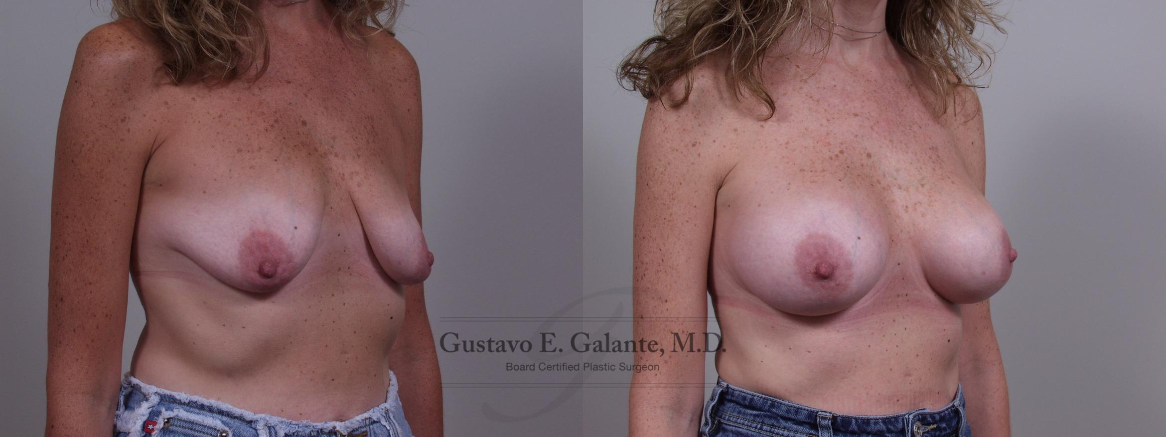 Breast Augmentation Case 56 Before & After View #2 | Valparaiso & Schererville, IN | Gustavo E. Galante, MD