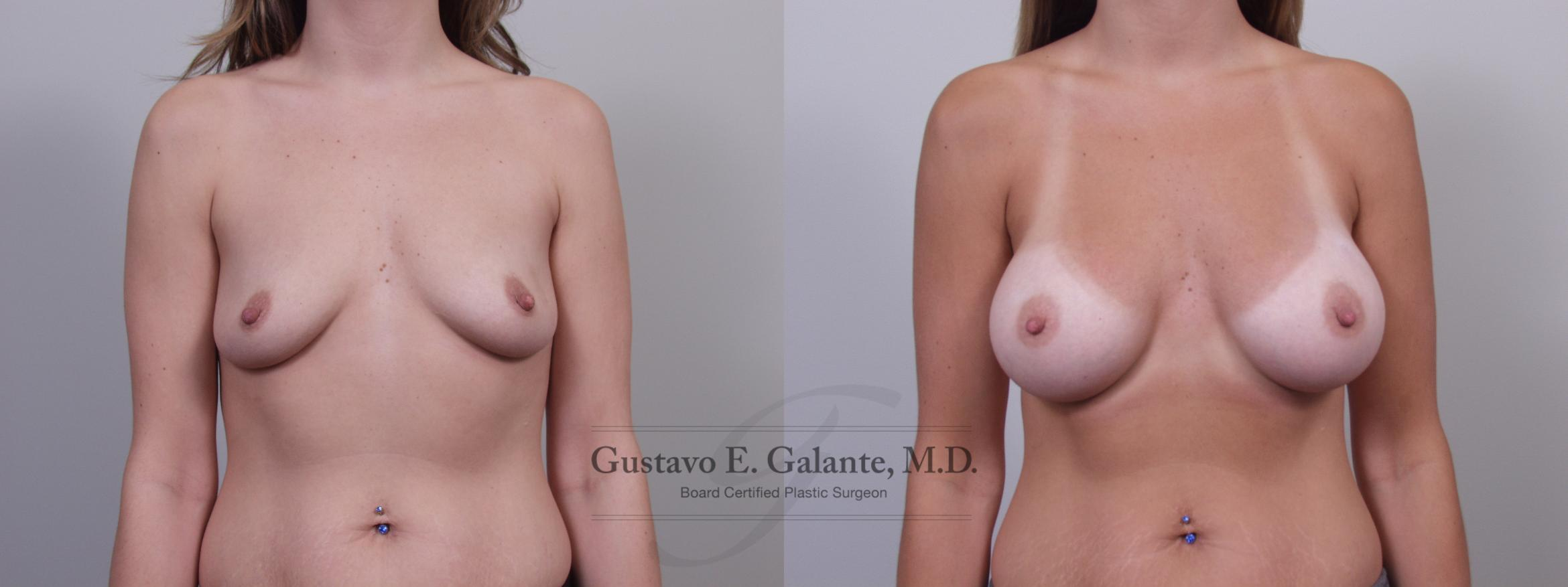 Breast Augmentation Case 66 Before & After View #1 | Valparaiso & Schererville, IN | Gustavo E. Galante, MD