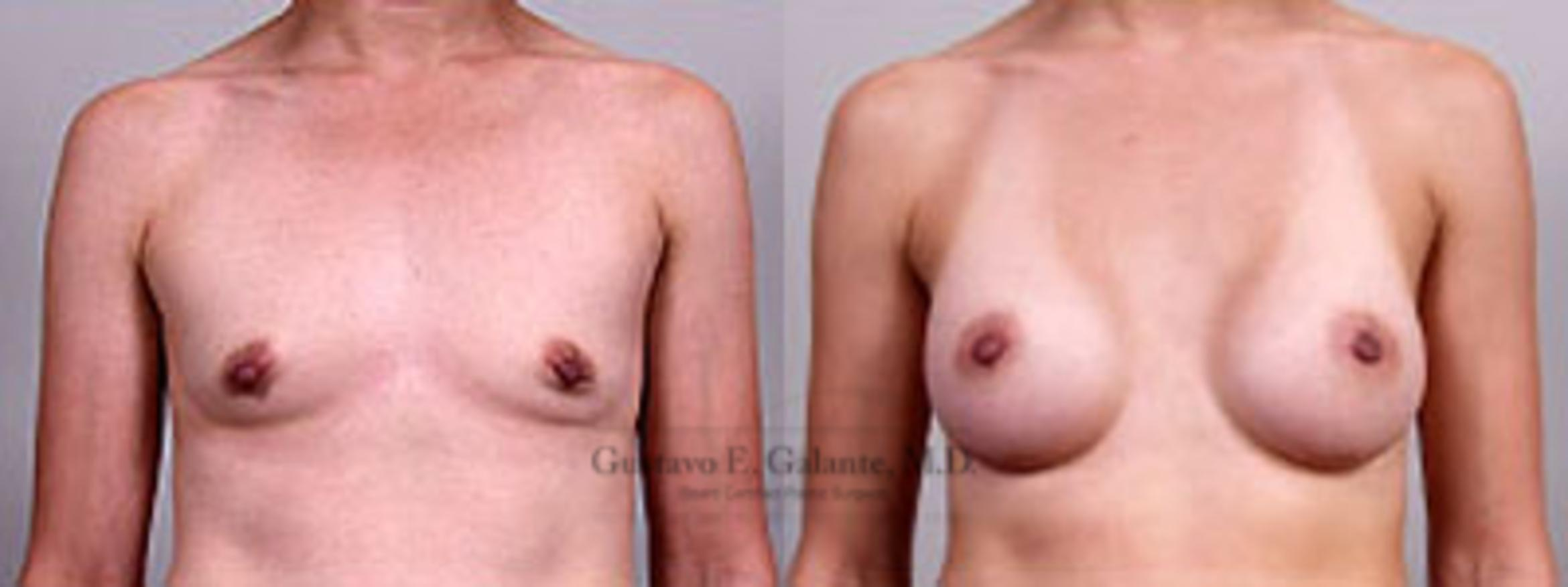 Breast Augmentation Case 7 Before & After View #1 | Valparaiso & Schererville, IN | Gustavo E. Galante, MD