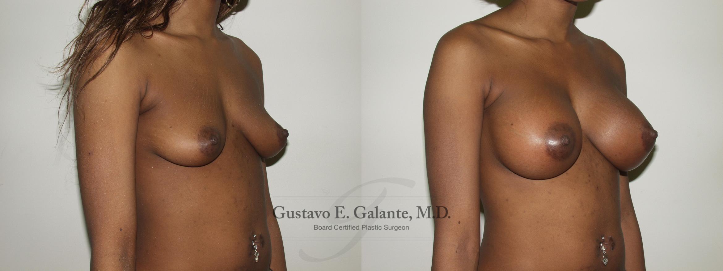 Breast Augmentation Case 72 Before & After View #2 | Valparaiso & Schererville, IN | Gustavo E. Galante, MD