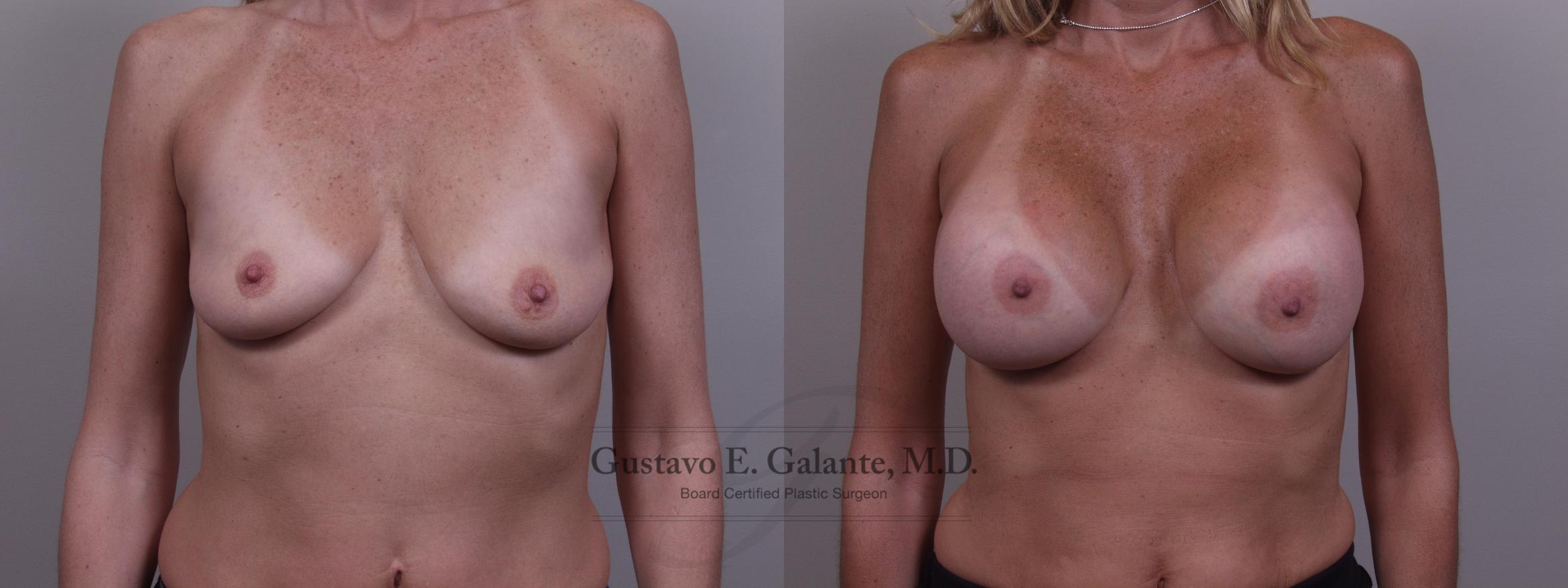 Breast Augmentation Case 83 Before & After View #1 | Valparaiso & Schererville, IN | Gustavo E. Galante, MD