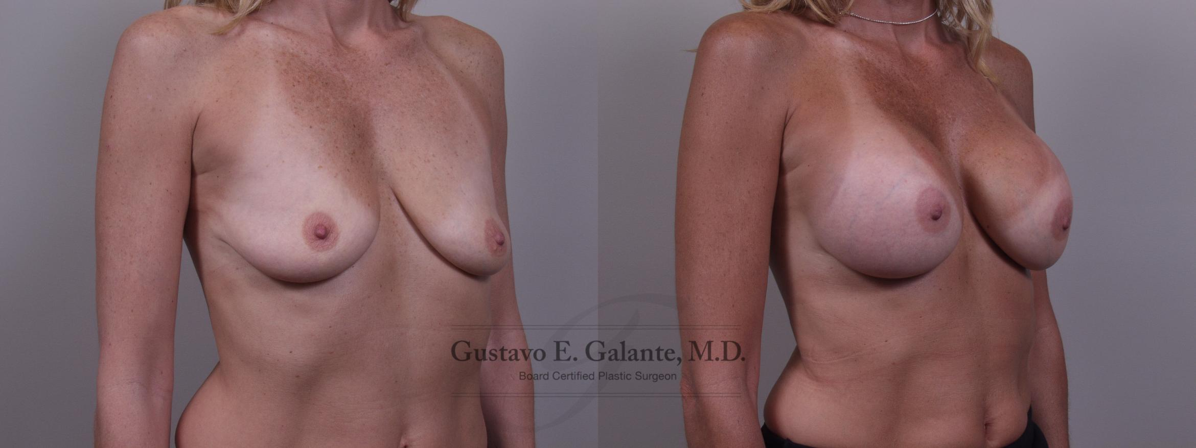 Breast Augmentation Case 83 Before & After View #2 | Valparaiso & Schererville, IN | Gustavo E. Galante, MD