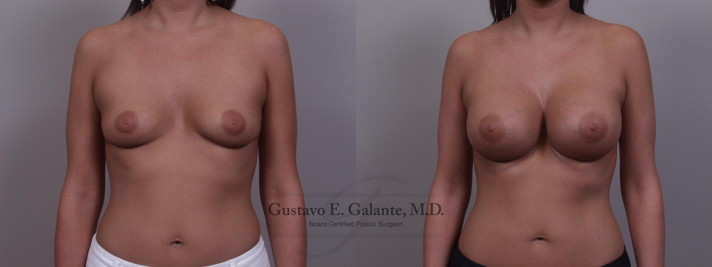 Breast Augmentation Case 89 Before & After View #1 | Valparaiso & Schererville, IN | Gustavo E. Galante, MD