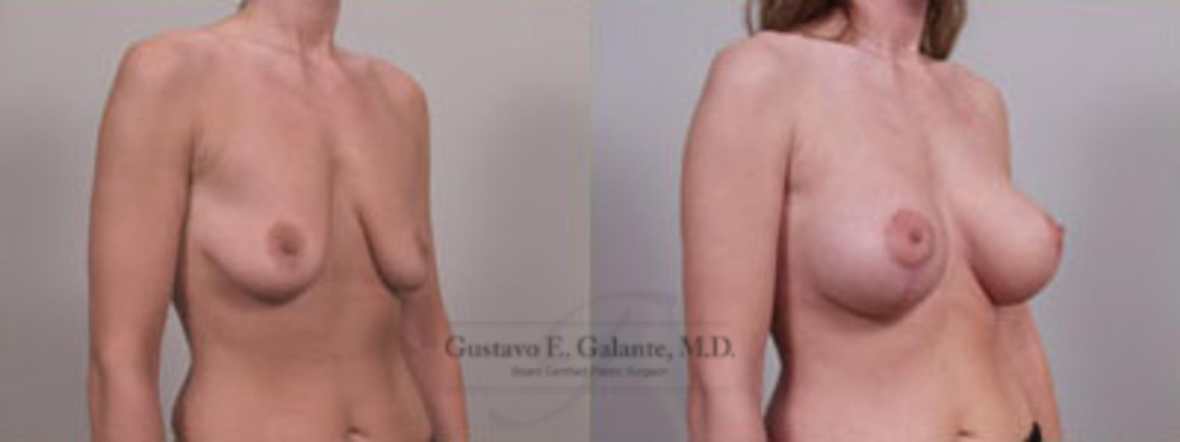 Breast Lift (Mastopexy) Case 10 Before & After View #1 | Valparaiso & Schererville, IN | Gustavo E. Galante, MD
