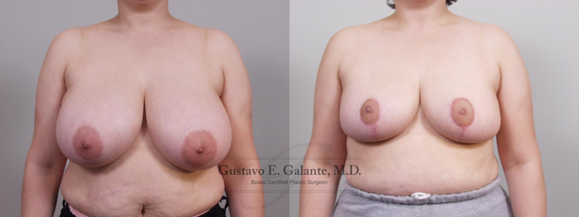 Breast Reduction Case 68 Before & After View #1 | Schererville, IN | Gustavo E. Galante, MD