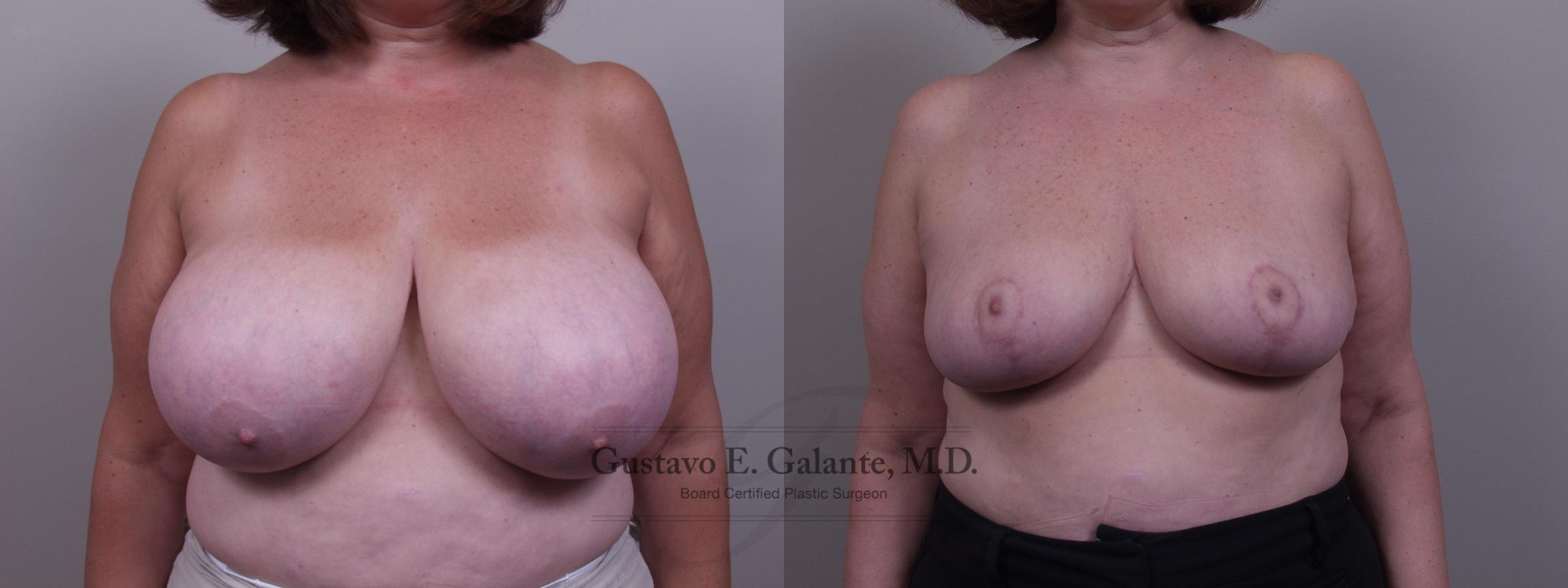 Breast Reduction Case 69 Before & After View #1 | Valparaiso & Schererville, IN | Gustavo E. Galante, MD