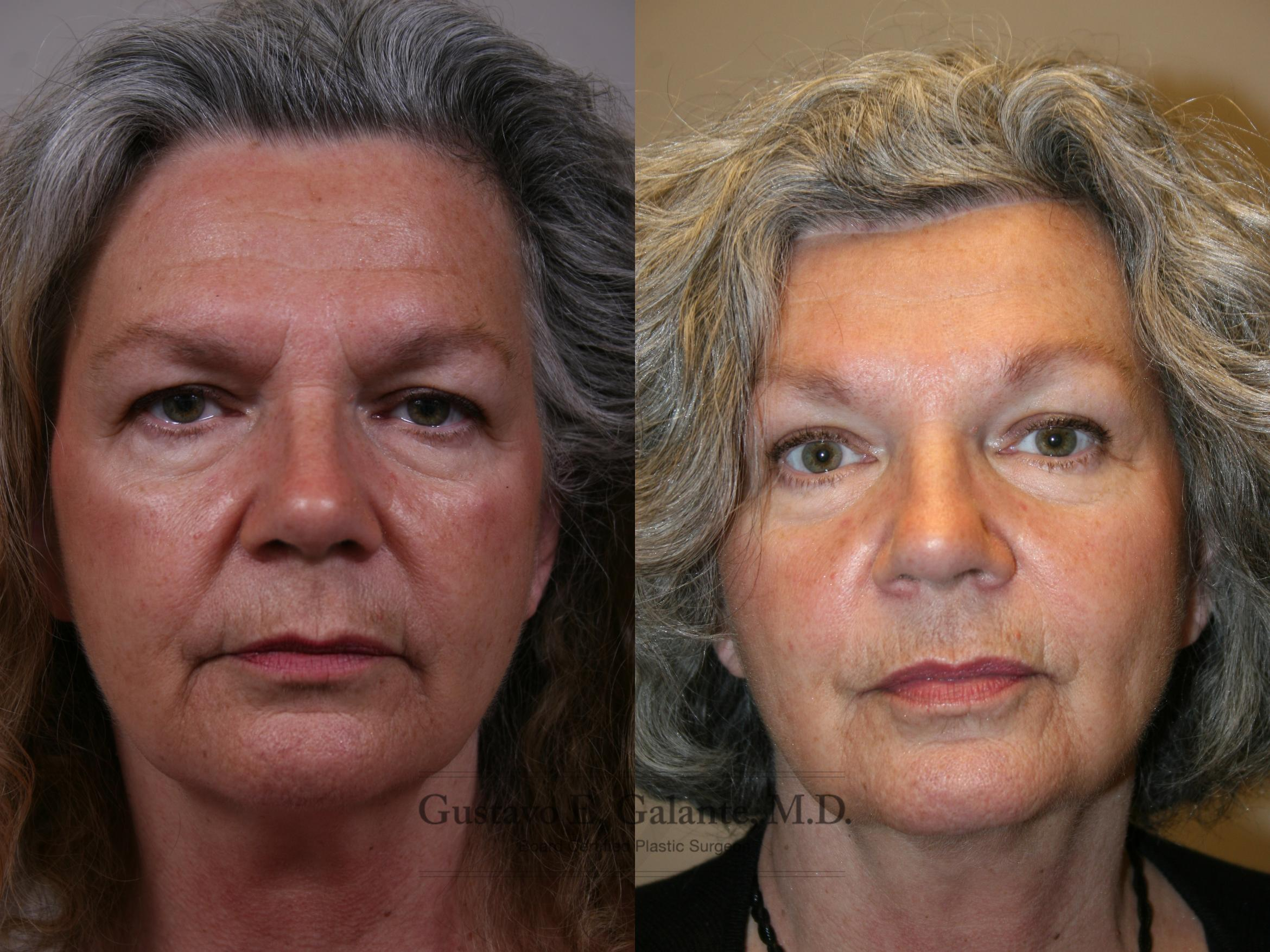Brow Lift Case 211 Before & After Front | Valparaiso & Schererville, IN | Gustavo E. Galante, MD
