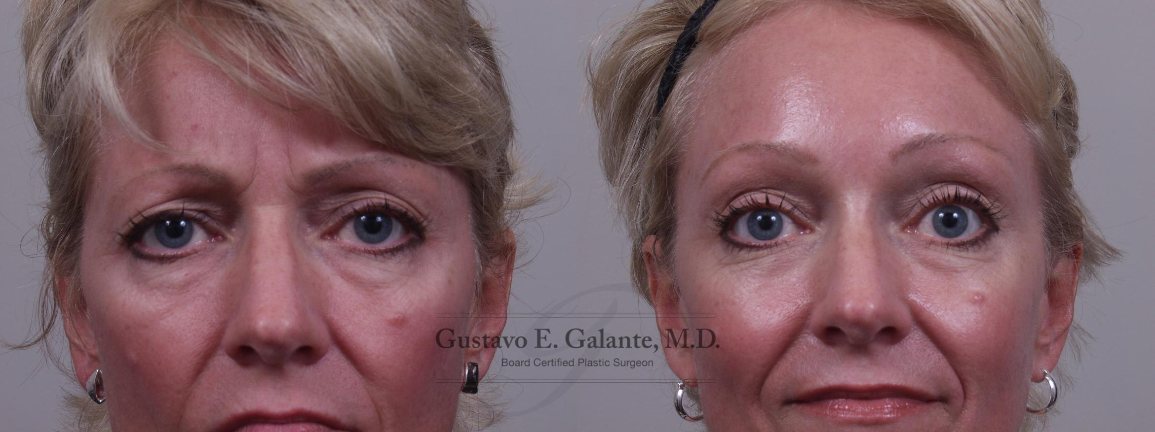 Brow Lift Case 76 Before & After View #1 | Valparaiso & Schererville, IN | Gustavo E. Galante, MD