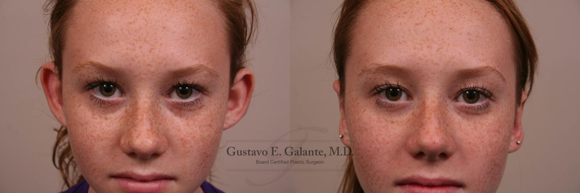 Ear Surgery (Otoplasty) Case 157 Before & After View #1 | Valparaiso & Schererville, IN | Gustavo E. Galante, MD