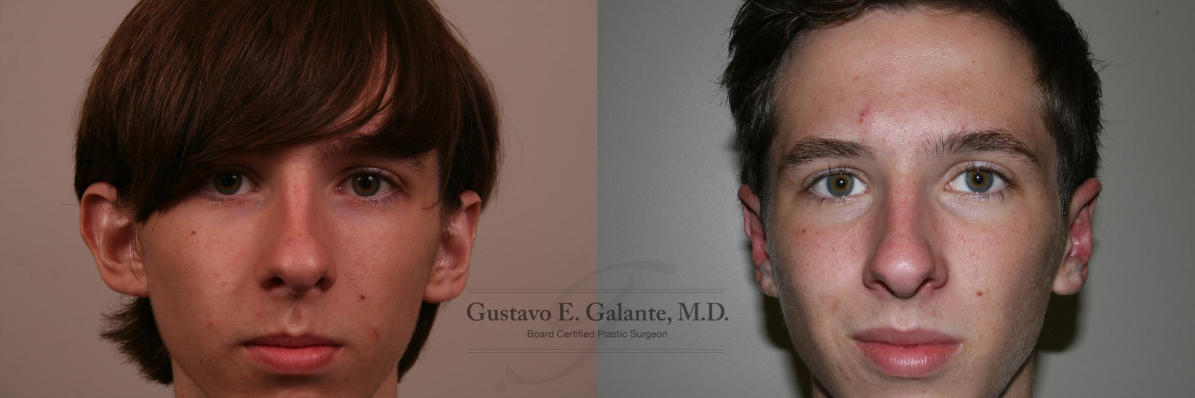 Ear Surgery (Otoplasty) Case 159 Before & After View #1 | Schererville, IN | Gustavo E. Galante, MD