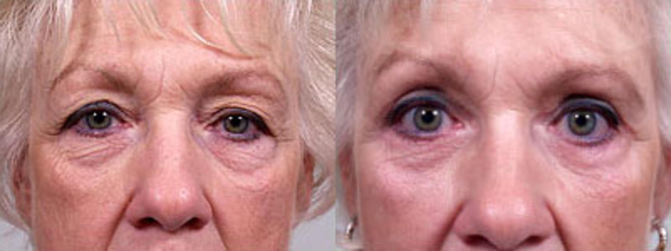 Eyelid Surgery (Blepharoplasty) Case 160 Before & After View #1 | Valparaiso & Schererville, IN | Gustavo E. Galante, MD
