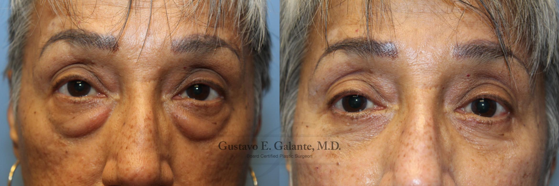 Eyelid Surgery (Blepharoplasty) Case 212 Before & After Front | Valparaiso & Schererville, IN | Gustavo E. Galante, MD
