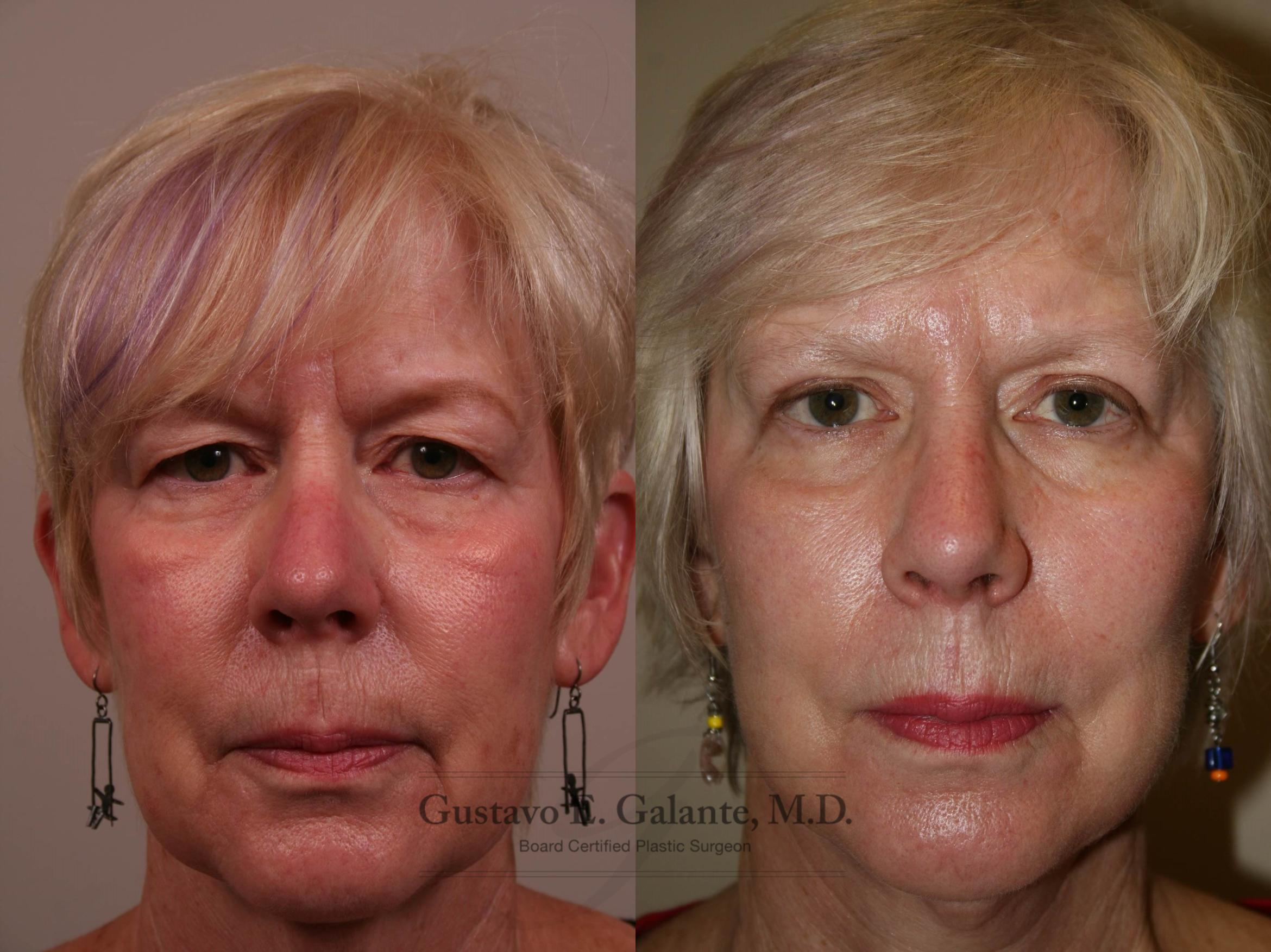Facelift Case 130 Before & After View #1 | Schererville, IN | Gustavo E. Galante, MD