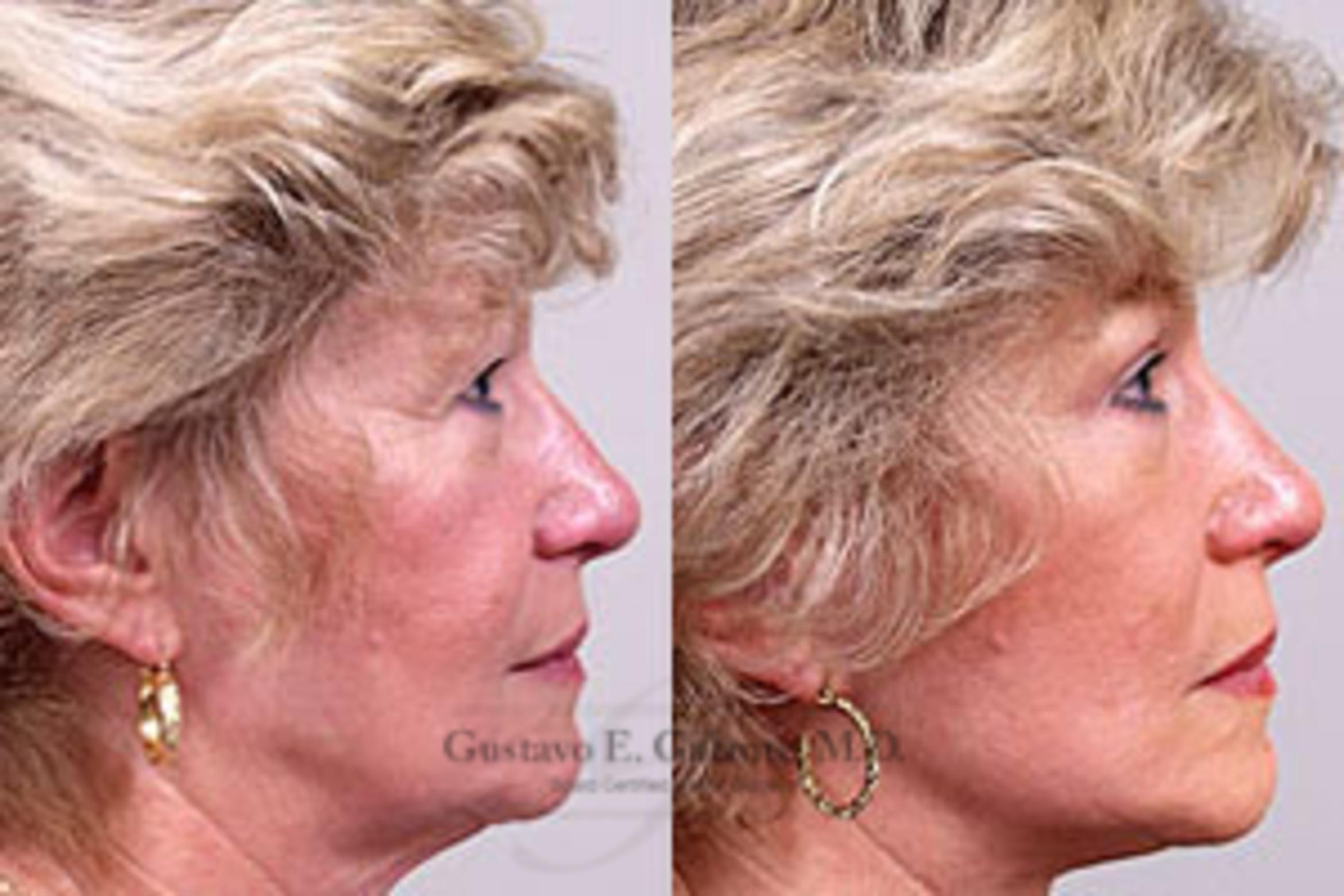 Facelift Case 20 Before & After View #1 | Schererville, IN | Gustavo E. Galante, MD