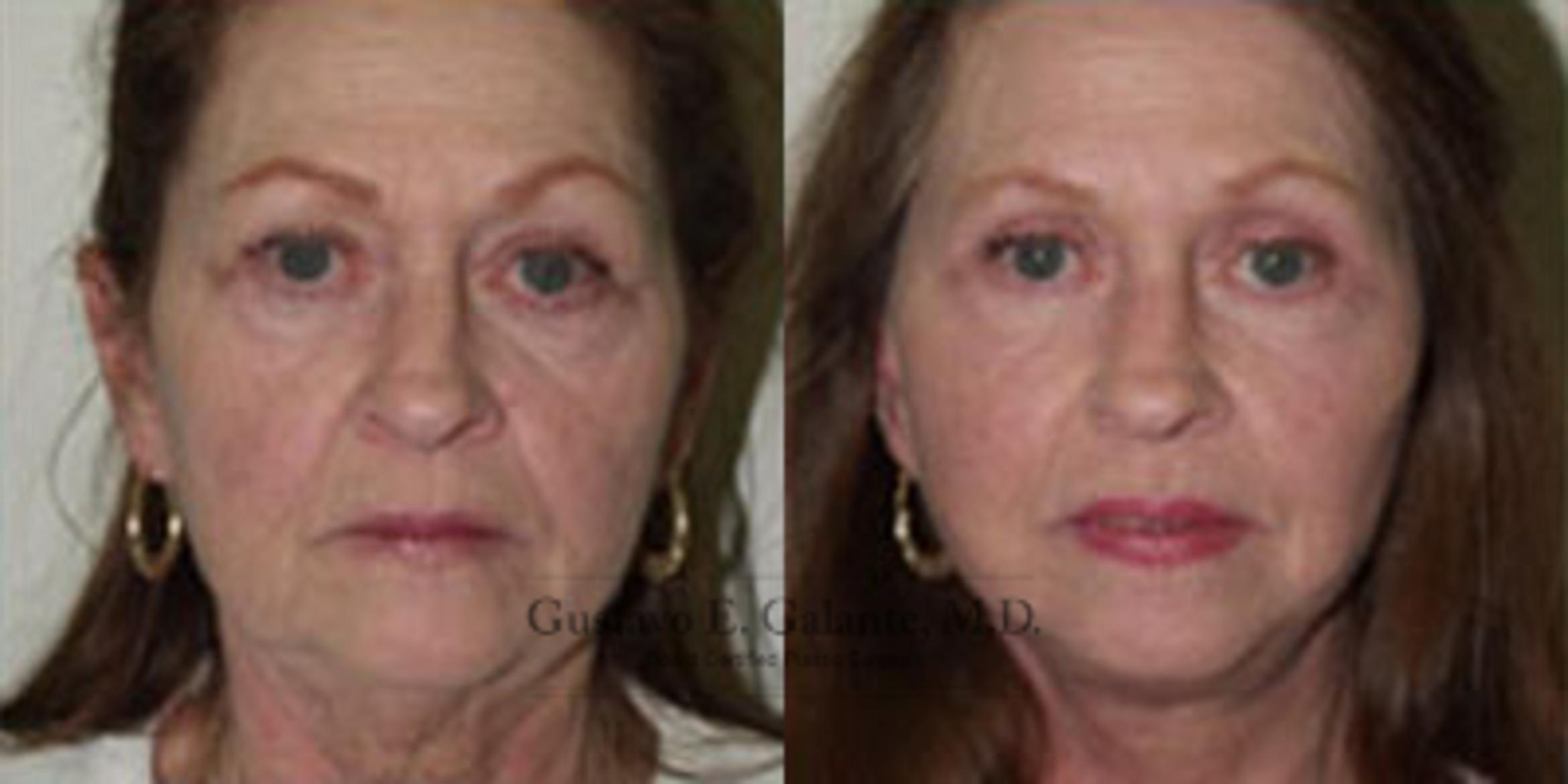 Facelift Case 23 Before & After View #1 | Schererville, IN | Gustavo E. Galante, MD