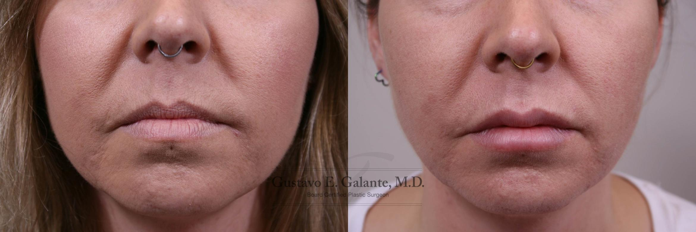 Lip Filler Injection Case 154 Before & After View #1 | Schererville, IN | Gustavo E. Galante, MD