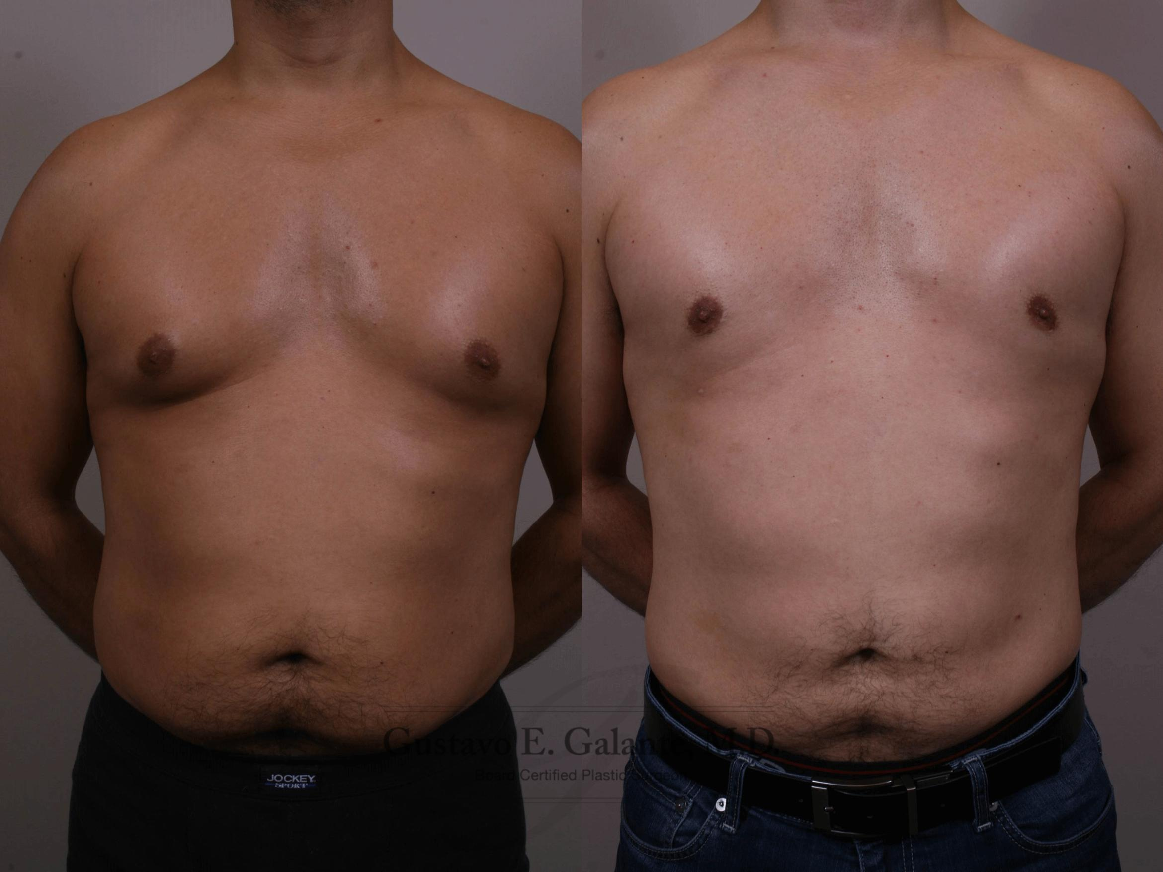 Liposuction Case 150 Before & After View #1 | Schererville, IN | Gustavo E. Galante, MD