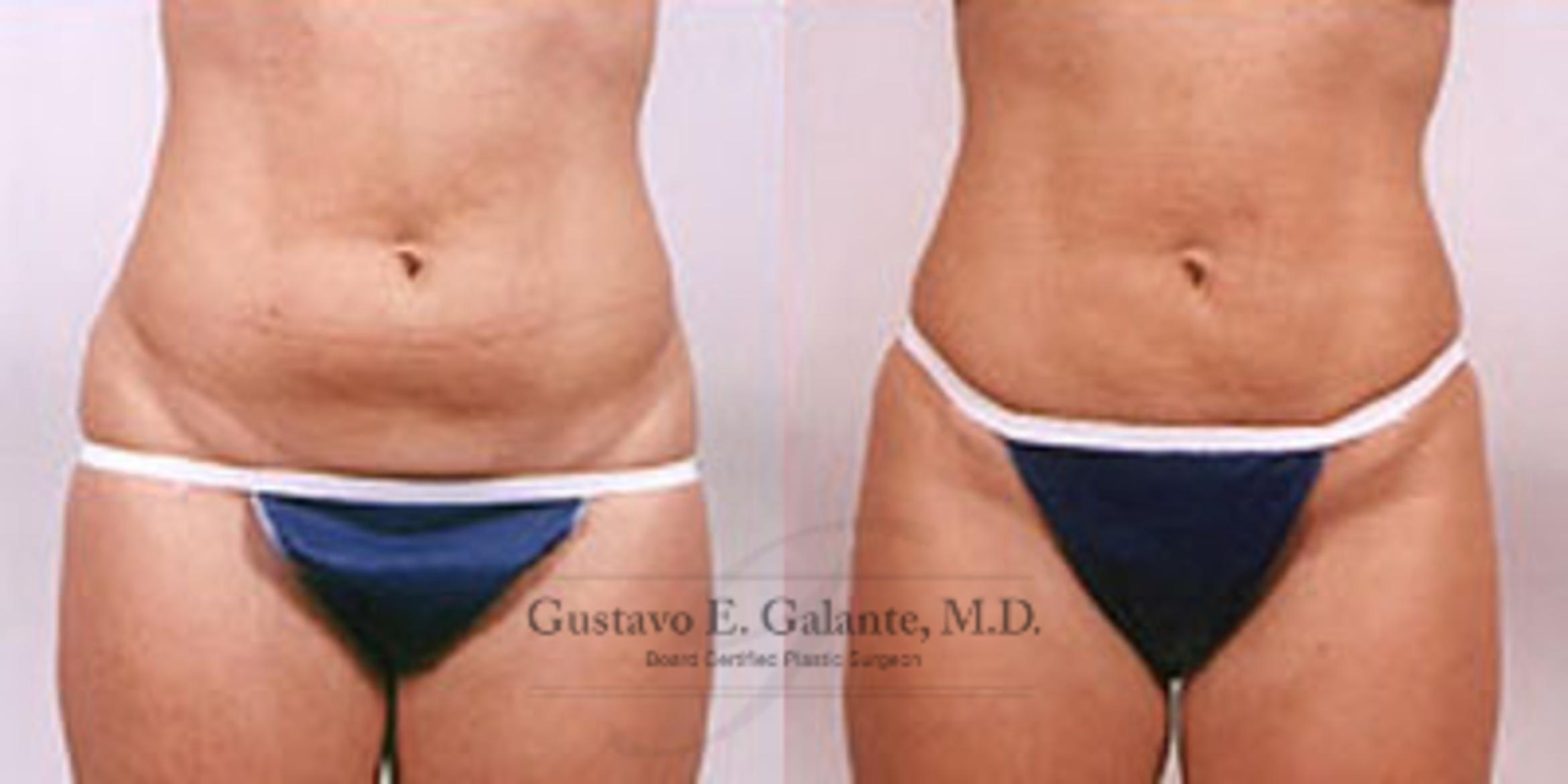Liposuction In Valparaiso Schererville Indiana Dr Galante