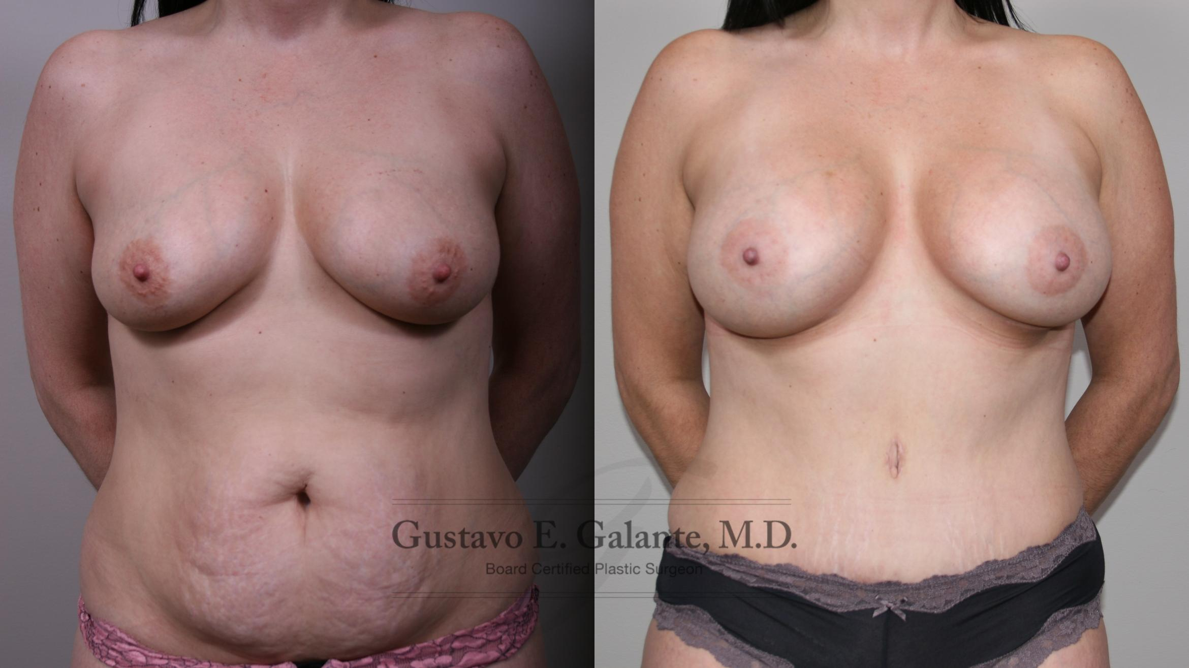 Mommy Makeover Case 195 Before & After Front | Valparaiso & Schererville, IN | Gustavo E. Galante, MD