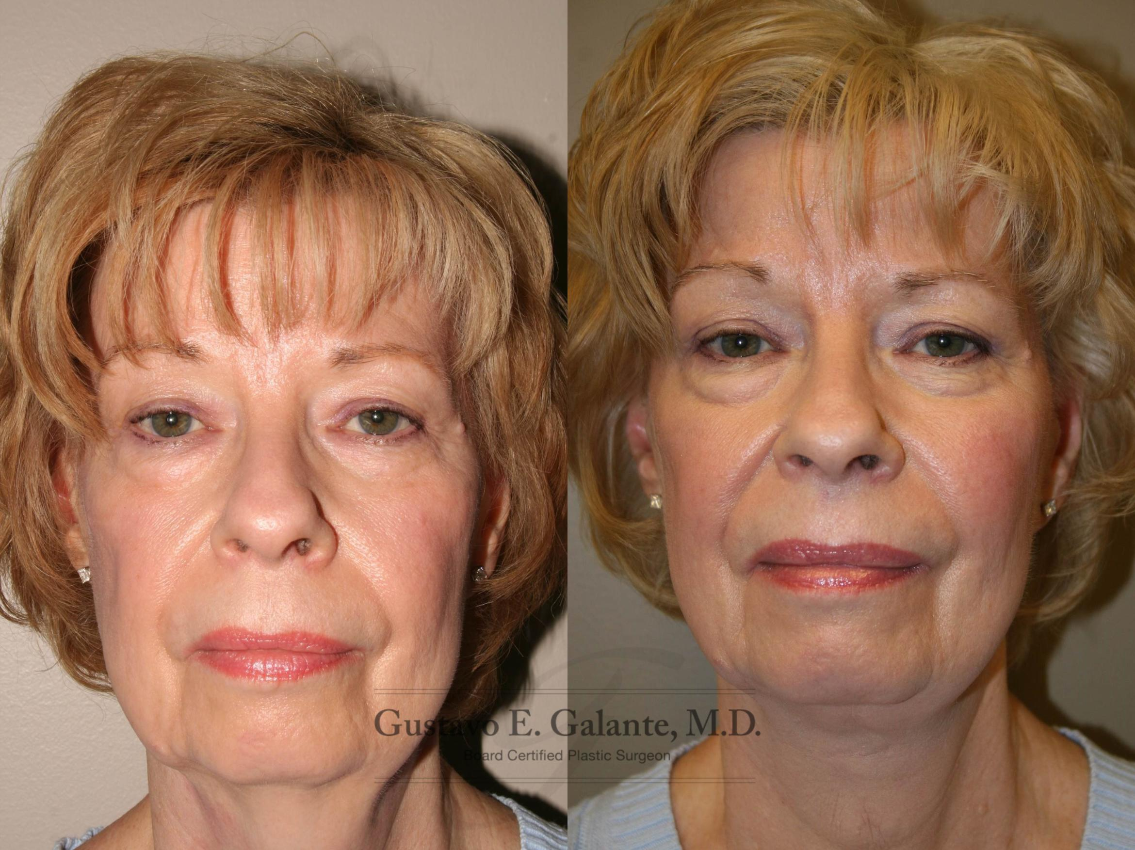 Neck Lift Case 126 Before & After View #1 | Schererville, IN | Gustavo E. Galante, MD