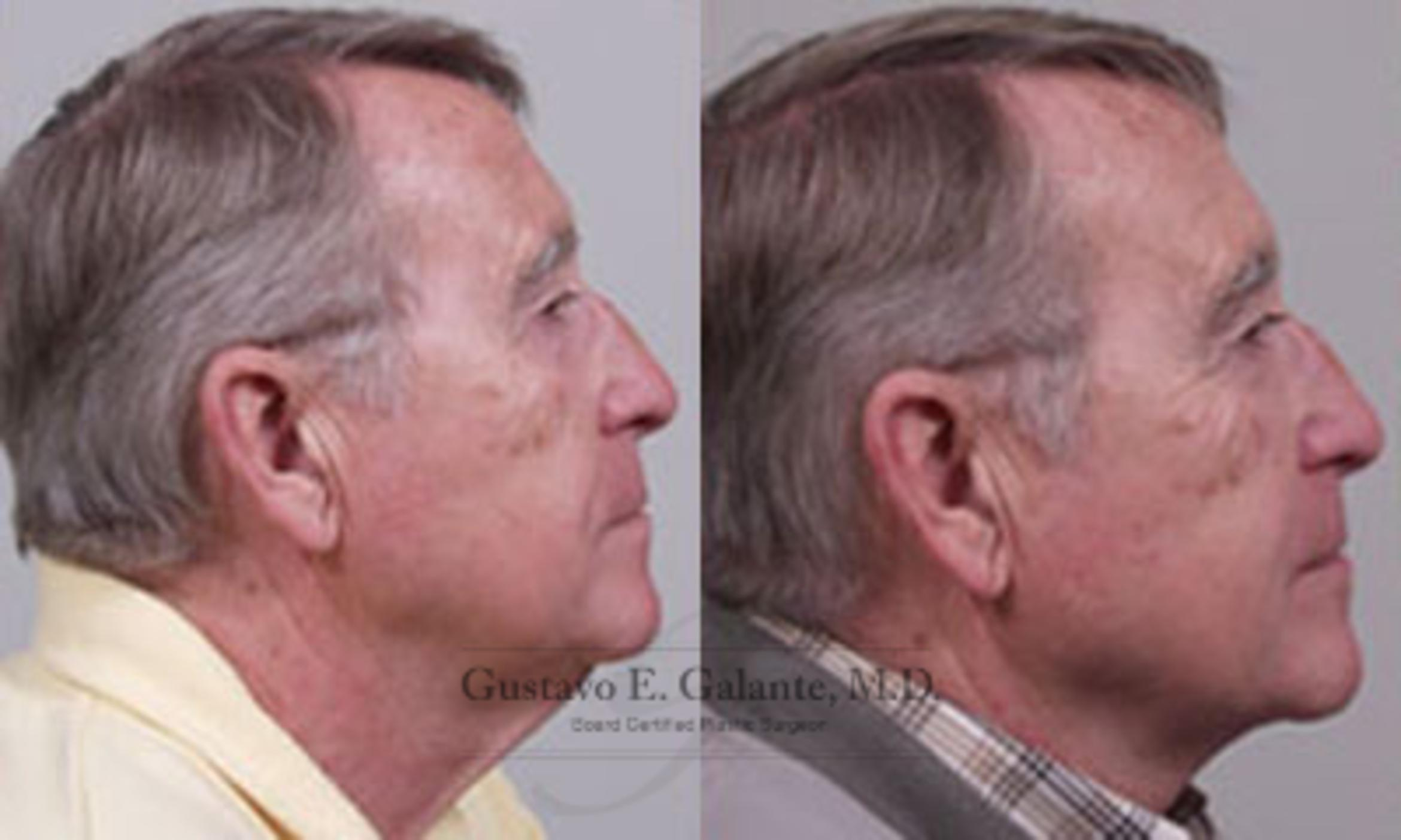 Neck Lift Case 17 Before & After View #1 | Schererville, IN | Gustavo E. Galante, MD