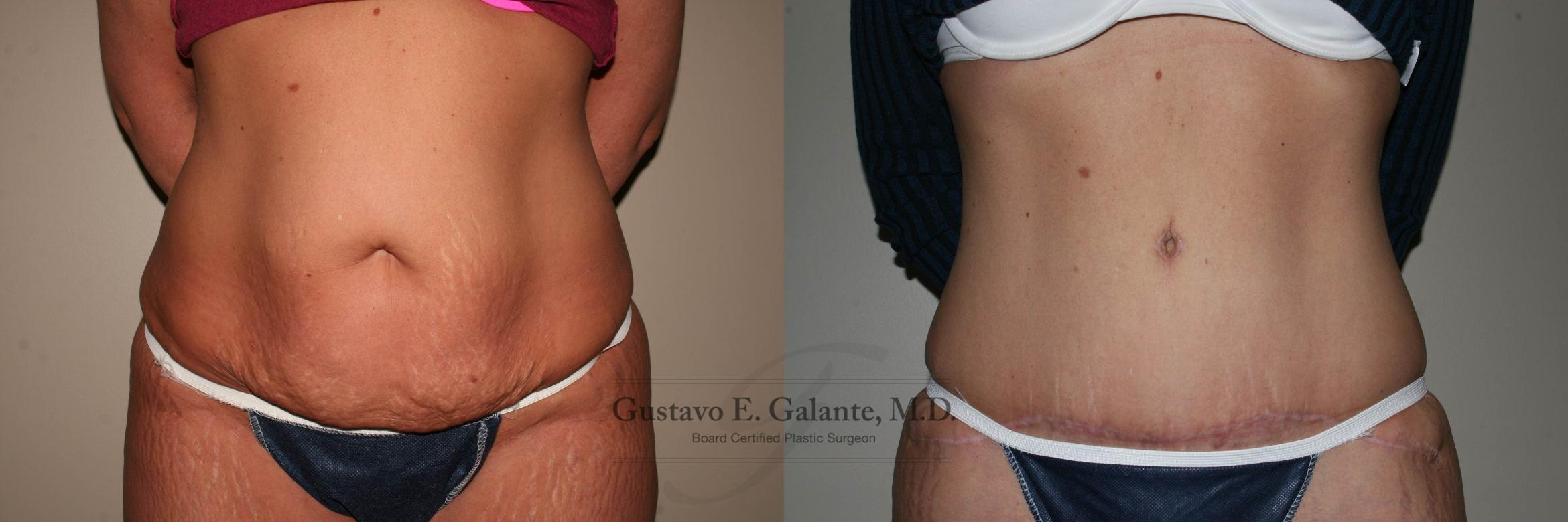 Tummy Tuck (Abdominoplasty) Case 125 Before & After View #1 | Schererville, IN | Gustavo E. Galante, MD